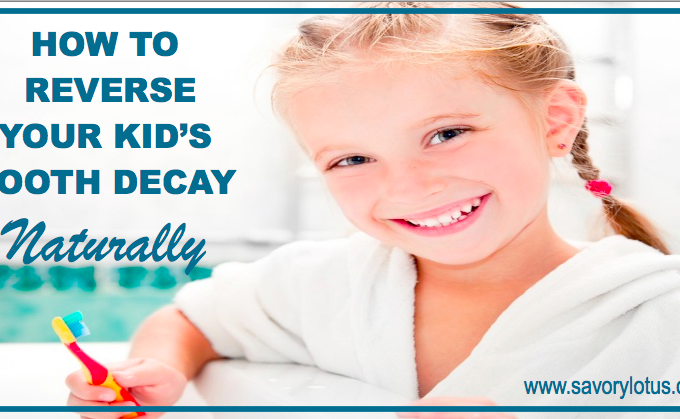 How to Reverse Your Kid's Tooth Decay Naturally