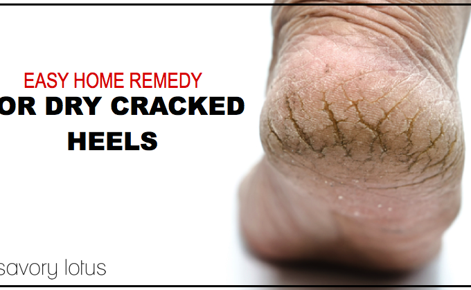 dry heels, cracked heels, how to heal, DIY
