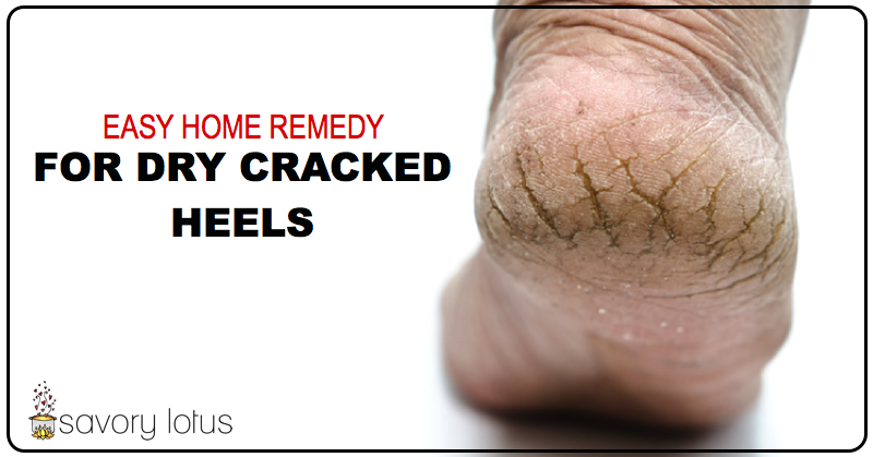 Healing Dry Feet And Cracked Heels - Easy Treatment