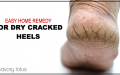 Easy Home Remedy for Dry Cracked Heels